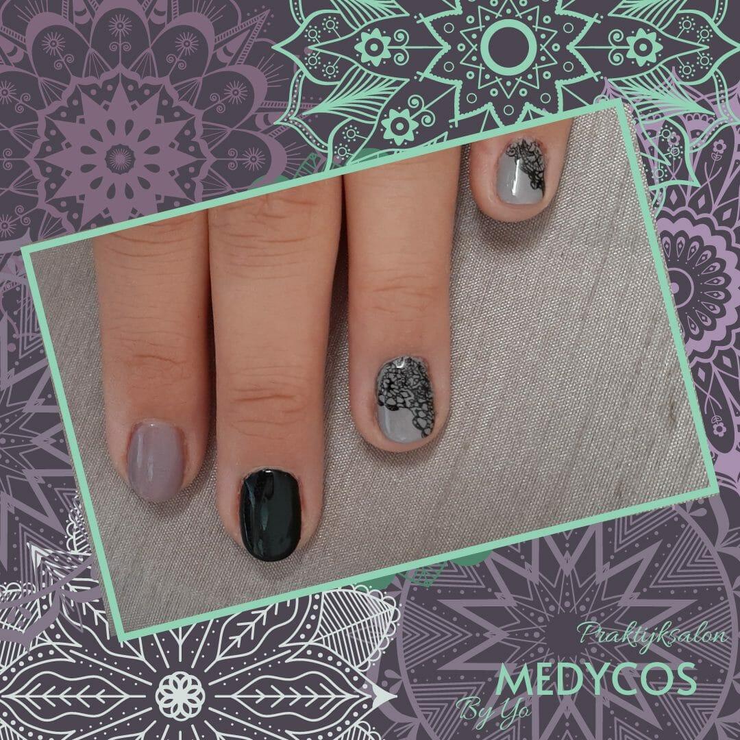 Medycos.com - Manicure gellak lace